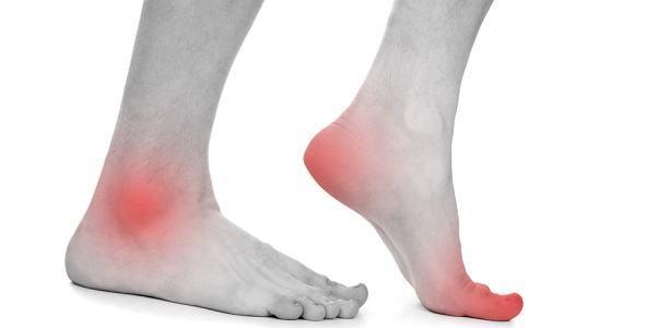 Escolhendo a palmilha ortopédica
